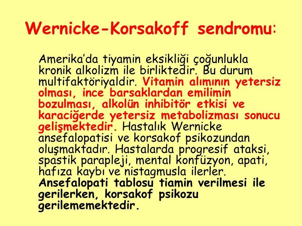 Wernicke-Korsakoff sendromu: