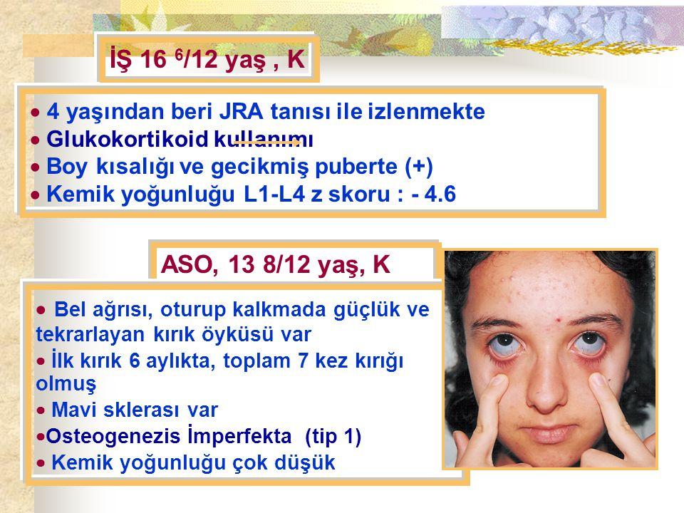 İŞ 16 6/12 yaş , K  4 yaşından beri JRA tanısı ile izlenmekte.  Glukokortikoid kullanımı.  Boy kısalığı ve gecikmiş puberte (+)