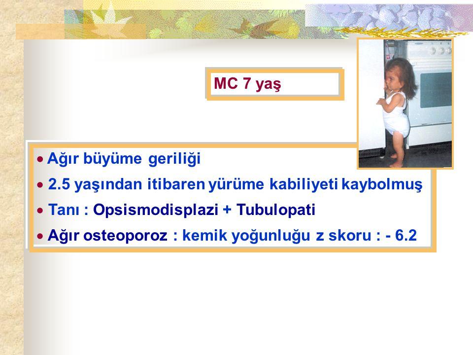 MC 7 yaş  Ağır büyüme geriliği. 2.5 yaşından itibaren yürüme kabiliyeti kaybolmuş. Tanı : Opsismodisplazi + Tubulopati.