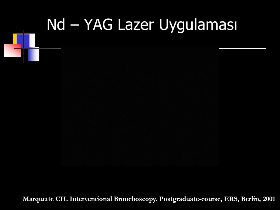 Nd – YAG Lazer Uygulaması