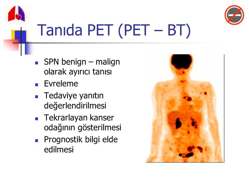 Tanıda PET (PET – BT) SPN benign – malign olarak ayırıcı tanısı
