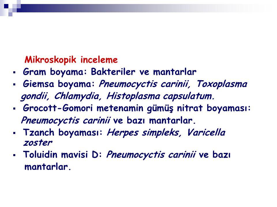 Mikroskopik inceleme Gram boyama: Bakteriler ve mantarlar. Giemsa boyama: Pneumocyctis carinii, Toxoplasma.