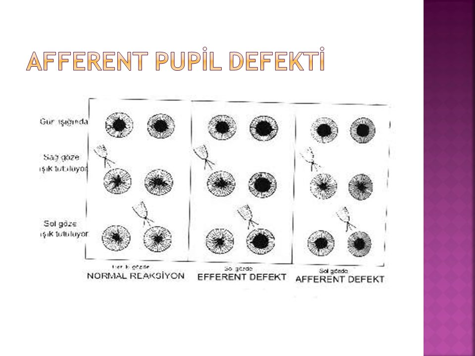 Afferent Pupİl defektİ