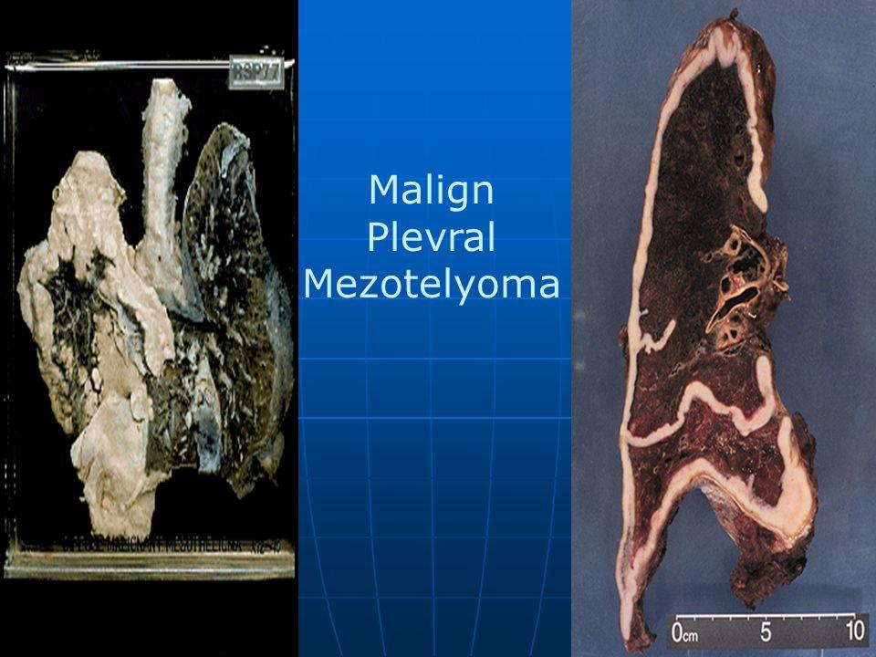 Malign Plevral Mezotelyoma