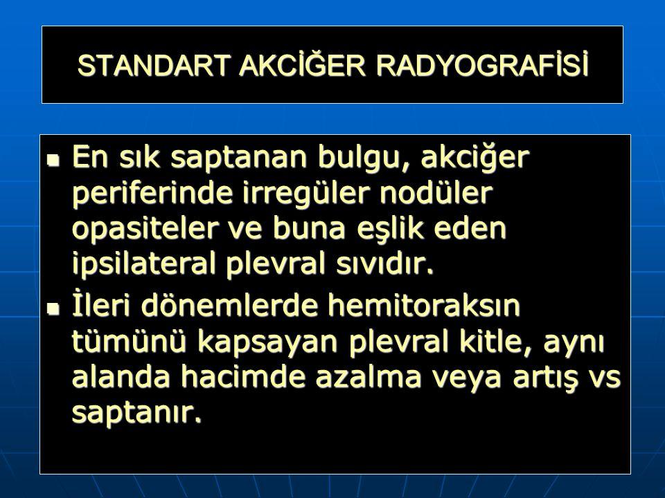 STANDART AKCİĞER RADYOGRAFİSİ
