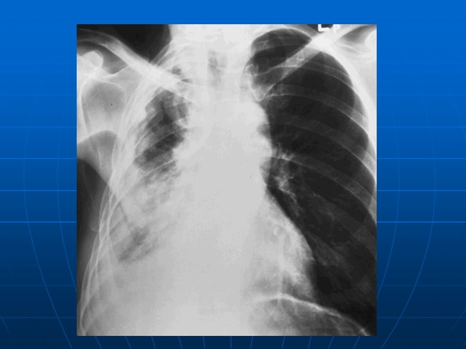 Frozen hemithorax in a 68-year-old man with MPM and no history of asbestos exposure.