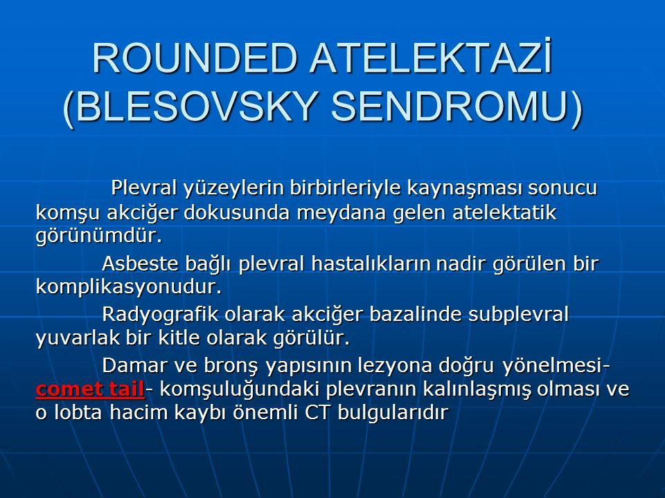 ROUNDED ATELEKTAZİ (BLESOVSKY SENDROMU)