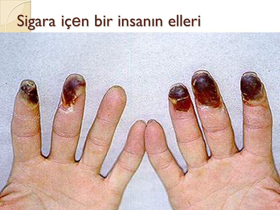 Sigara içen bir insanın elleri