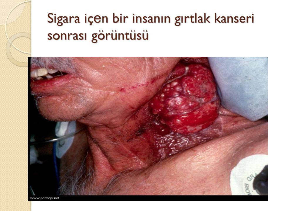 Sigara içen bir insanın gırtlak kanseri sonrası görüntüsü