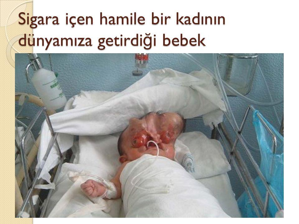 Sigara içen hamile bir kadının dünyamıza getirdiği bebek