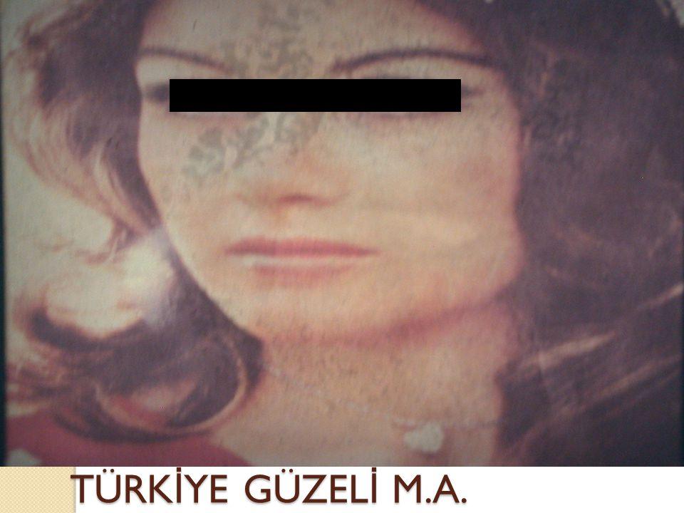 TÜRKİYE GÜZELİ M.A.