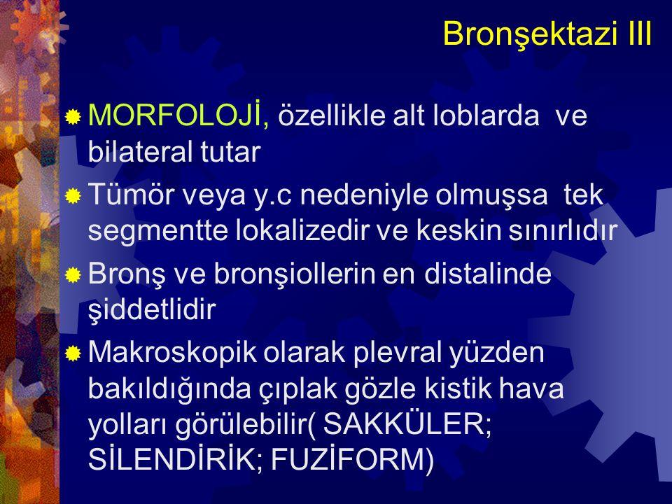 Bronşektazi III MORFOLOJİ, özellikle alt loblarda ve bilateral tutar