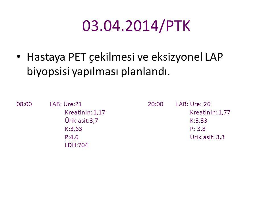 03.04.2014/PTK Hastaya PET çekilmesi ve eksizyonel LAP biyopsisi yapılması planlandı. 08:00 LAB: Üre:21.