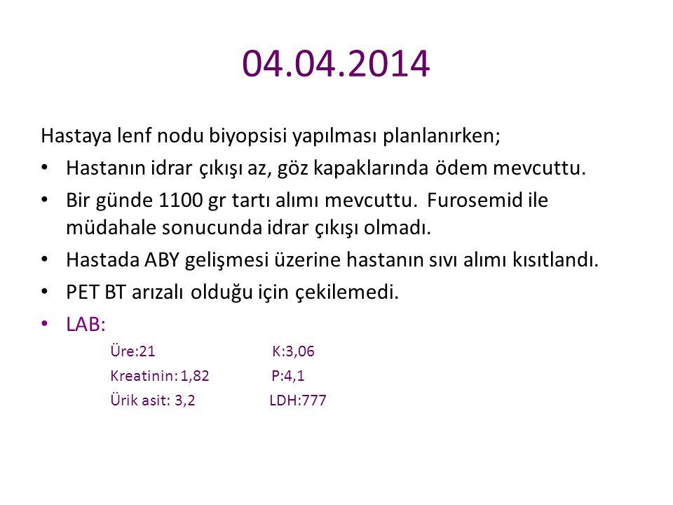 04.04.2014 Hastaya lenf nodu biyopsisi yapılması planlanırken;