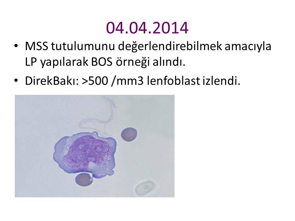 04.04.2014 MSS tutulumunu değerlendirebilmek amacıyla LP yapılarak BOS örneği alındı.