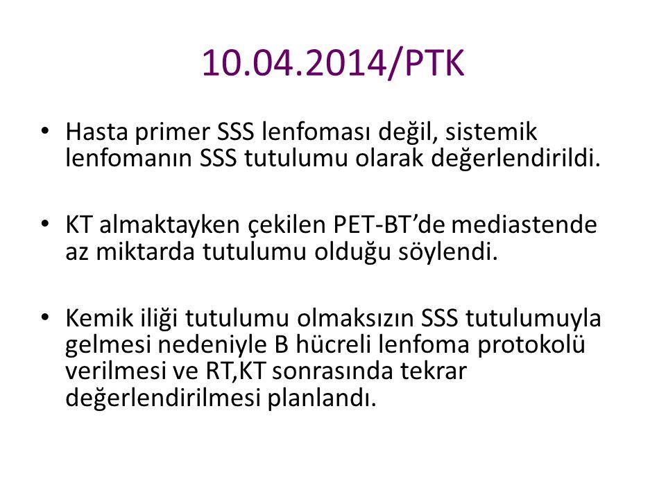 10.04.2014/PTK Hasta primer SSS lenfoması değil, sistemik lenfomanın SSS tutulumu olarak değerlendirildi.