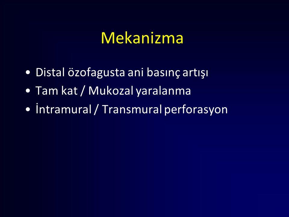 Mekanizma Distal özofagusta ani basınç artışı