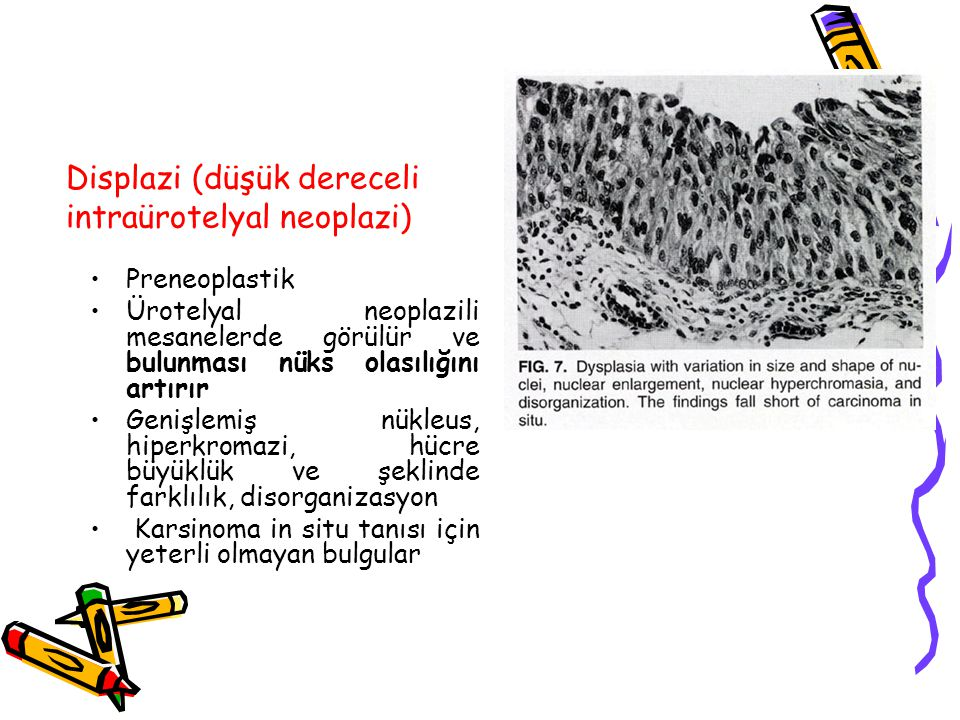 Displazi (düşük dereceli intraürotelyal neoplazi)