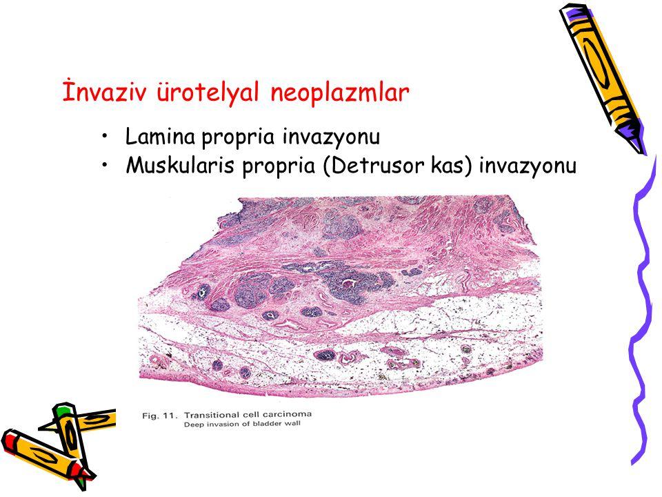 İnvaziv ürotelyal neoplazmlar