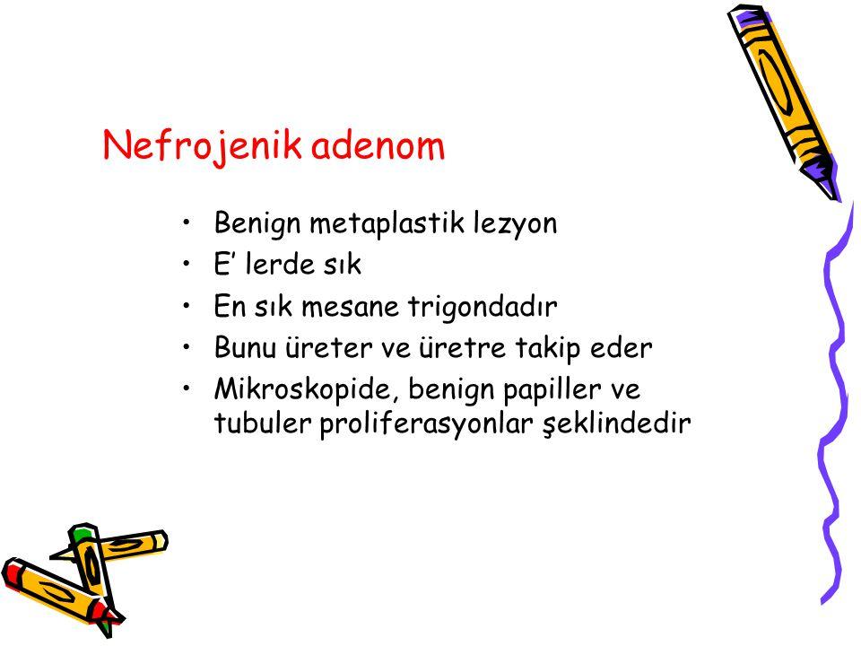 Nefrojenik adenom Benign metaplastik lezyon E' lerde sık