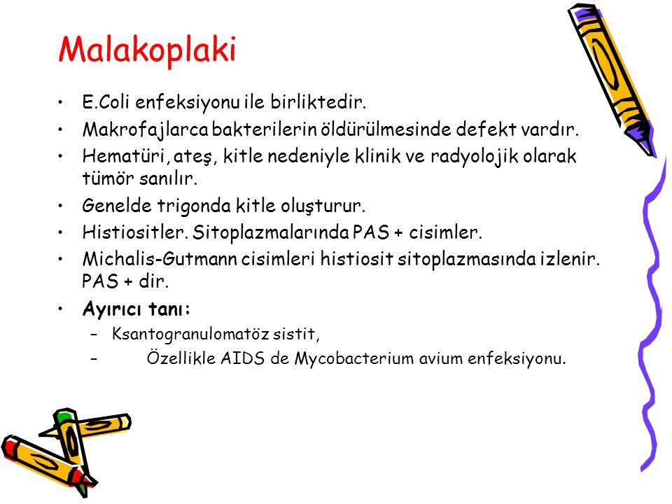 Malakoplaki E.Coli enfeksiyonu ile birliktedir.
