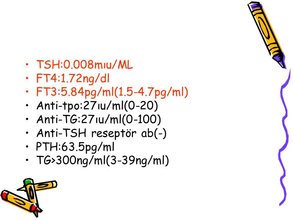 TSH:0.008mıu/ML FT4:1.72ng/dl. FT3:5.84pg/ml(1.5-4.7pg/ml) Anti-tpo:27ıu/ml(0-20) Anti-TG:27ıu/ml(0-100)