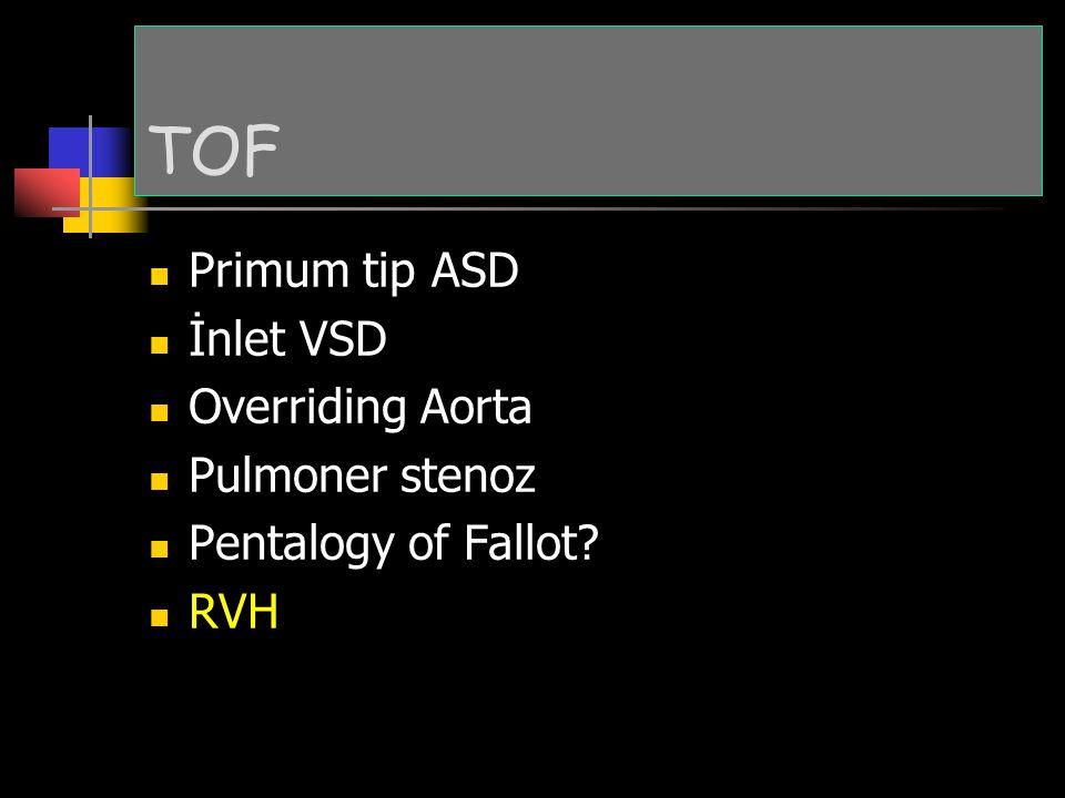 TOF Primum tip ASD İnlet VSD Overriding Aorta Pulmoner stenoz