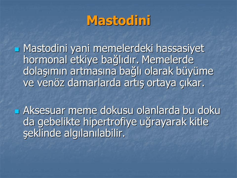 Mastodini
