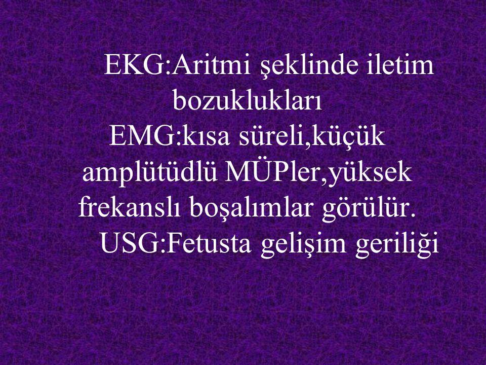EKG:Aritmi şeklinde iletim bozuklukları EMG:kısa süreli,küçük amplütüdlü MÜPler,yüksek frekanslı boşalımlar görülür.