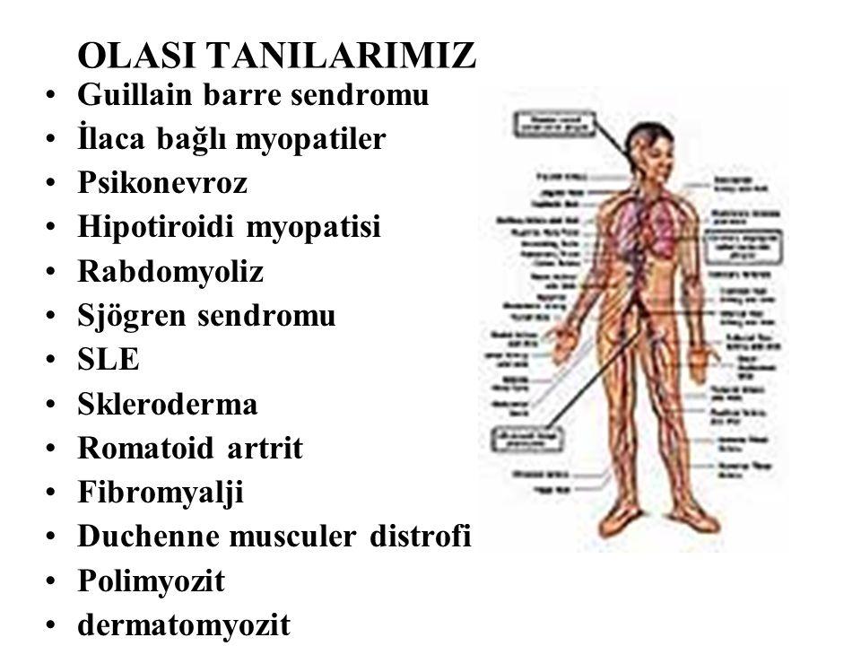 OLASI TANILARIMIZ Guillain barre sendromu İlaca bağlı myopatiler