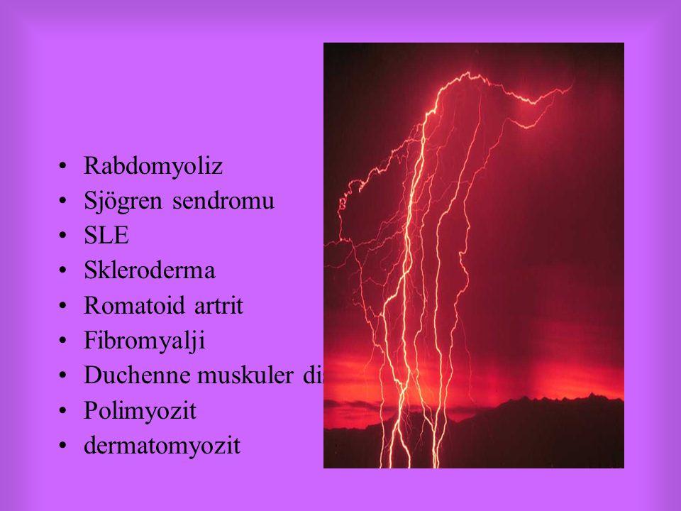 Rabdomyoliz Sjögren sendromu. SLE. Skleroderma. Romatoid artrit. Fibromyalji. Duchenne muskuler distrofi.
