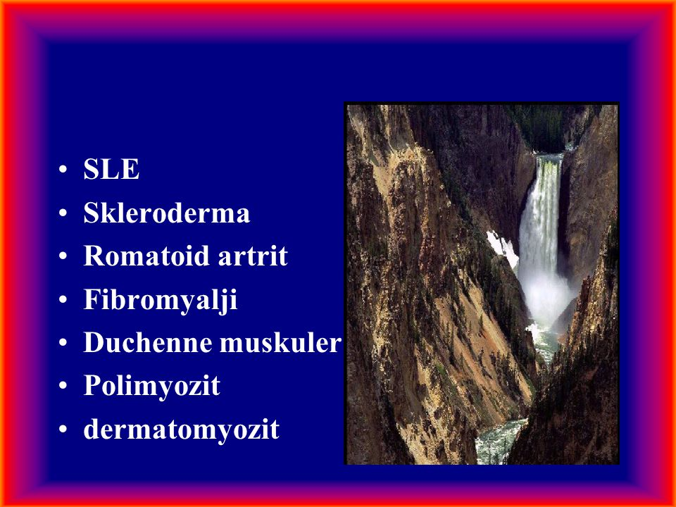 SLE Skleroderma Romatoid artrit Fibromyalji Duchenne muskuler distrofi Polimyozit dermatomyozit