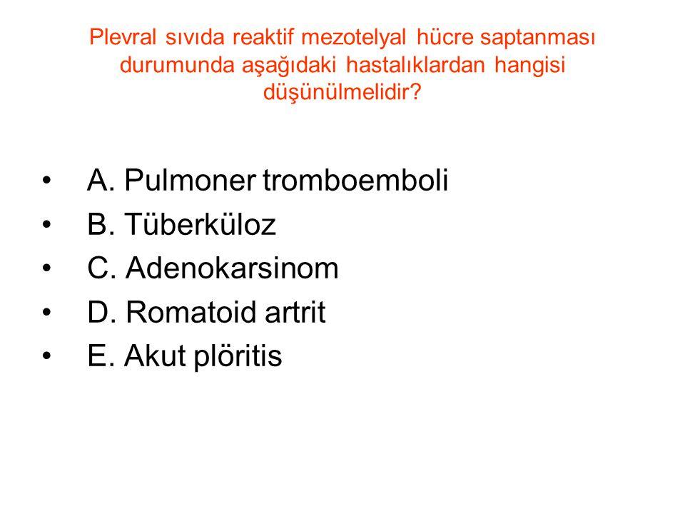 A. Pulmoner tromboemboli B. Tüberküloz C. Adenokarsinom