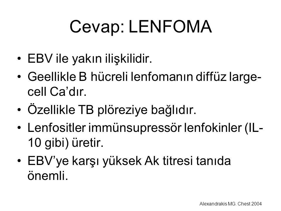 Cevap: LENFOMA EBV ile yakın ilişkilidir.
