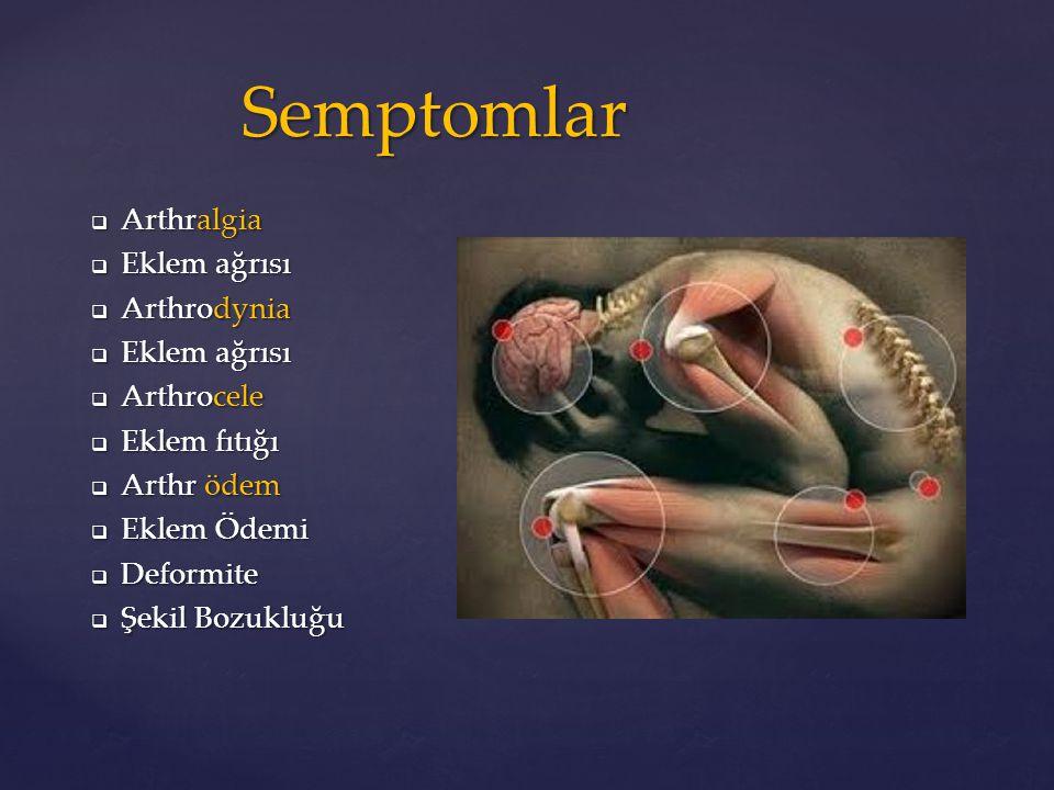 Semptomlar Arthralgia Eklem ağrısı Arthrodynia Arthrocele Eklem fıtığı