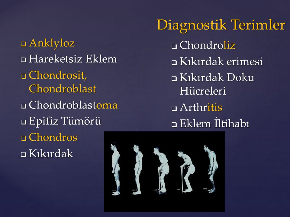 Diagnostik Terimler Anklyloz Chondroliz Hareketsiz Eklem