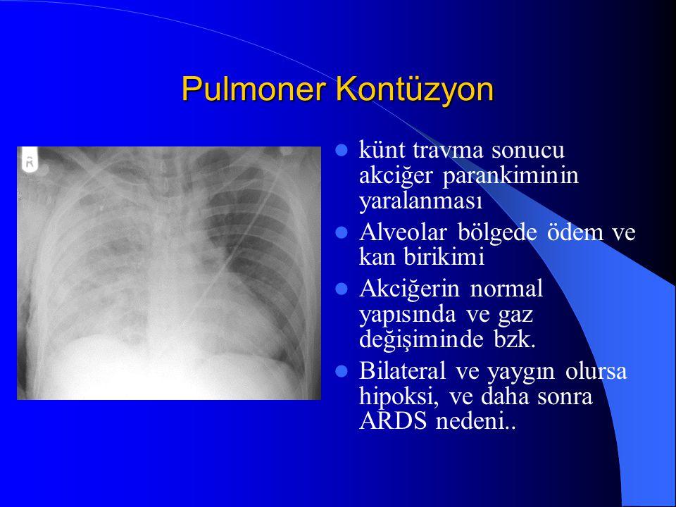 Pulmoner Kontüzyon künt travma sonucu akciğer parankiminin yaralanması