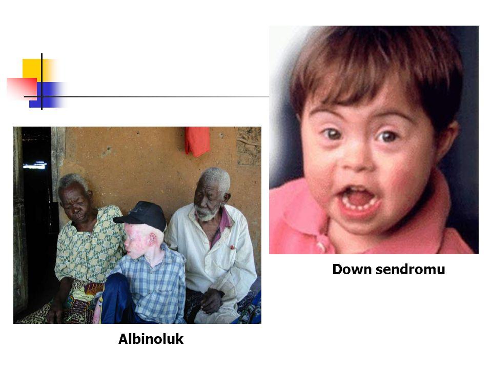 Down sendromu Albinoluk