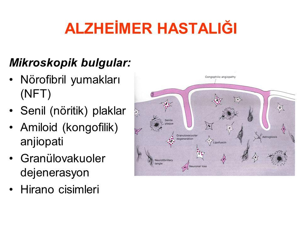 ALZHEİMER HASTALIĞI Mikroskopik bulgular: Nörofibril yumakları (NFT)
