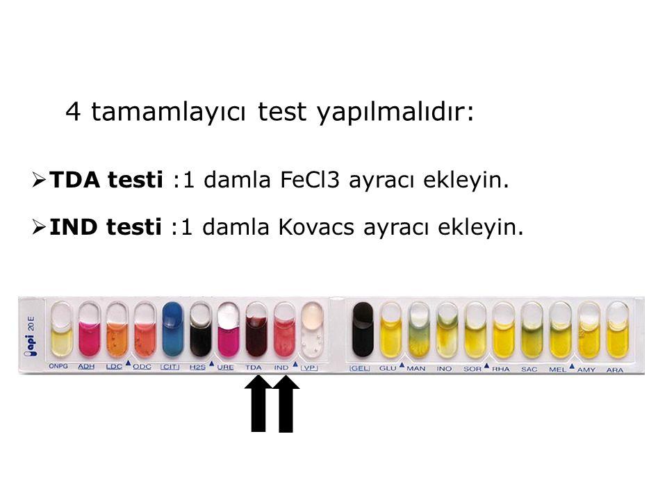 4 tamamlayıcı test yapılmalıdır: