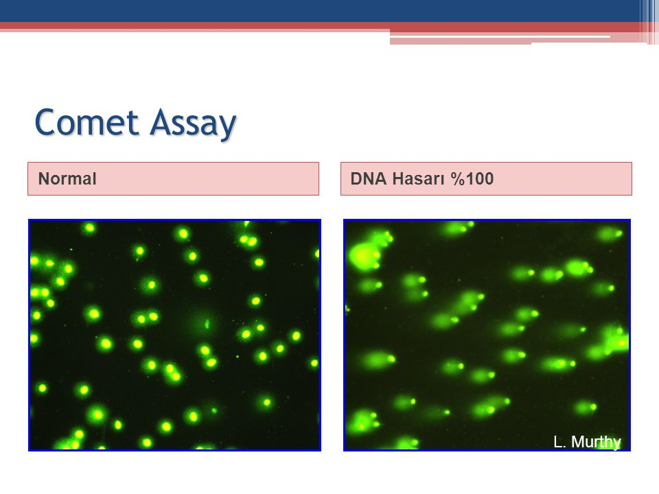 Comet Assay Normal DNA Hasarı %100 L. Murthy