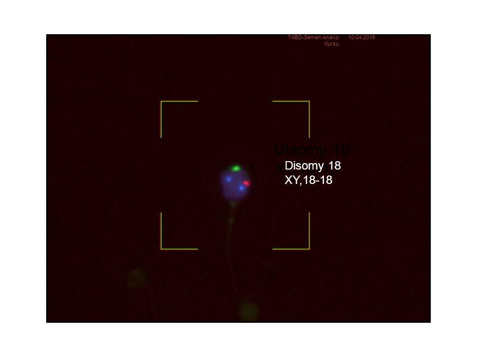 Disomy 18: XY,18-18 Disomy 18 XY,18-18 TKBD-Semen Analizi Kursu
