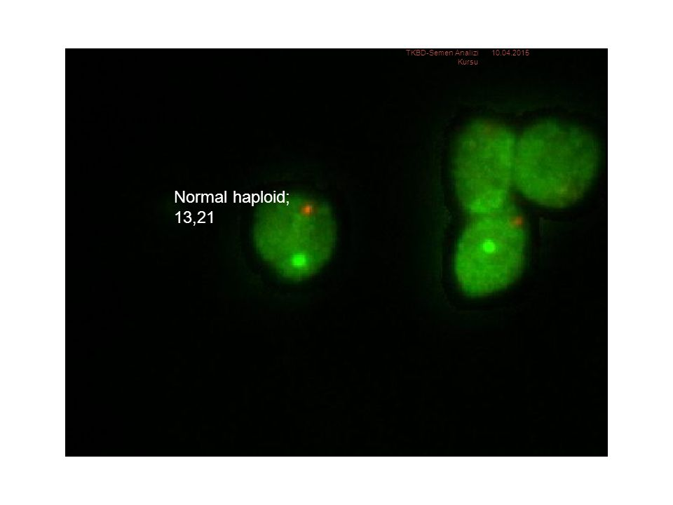 Normal haploid: 13, 21 Normal haploid; 13,21 TKBD-Semen Analizi Kursu