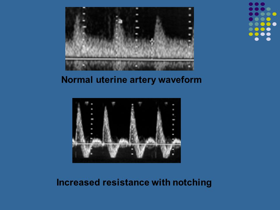 Normal uterine artery waveform