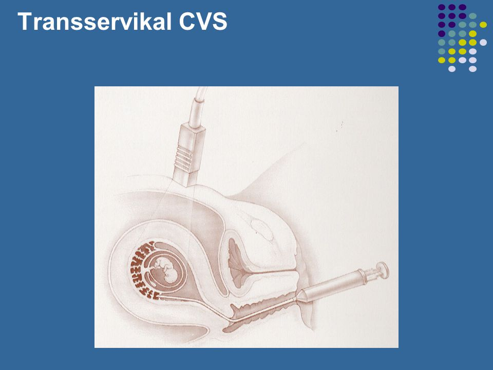 Transservikal CVS