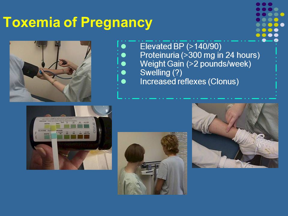 Toxemia of Pregnancy Elevated BP (>140/90)