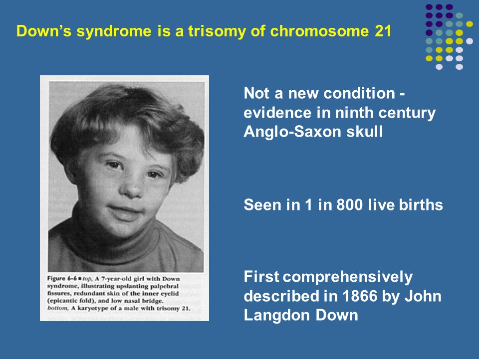 Down's syndrome is a trisomy of chromosome 21