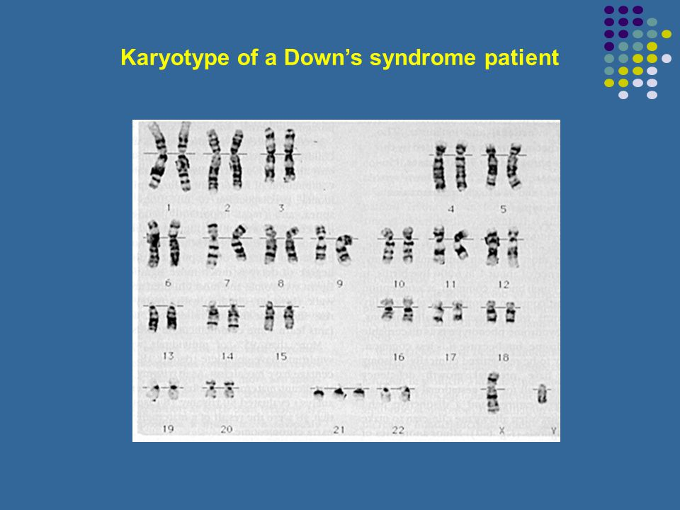 Karyotype of a Down's syndrome patient