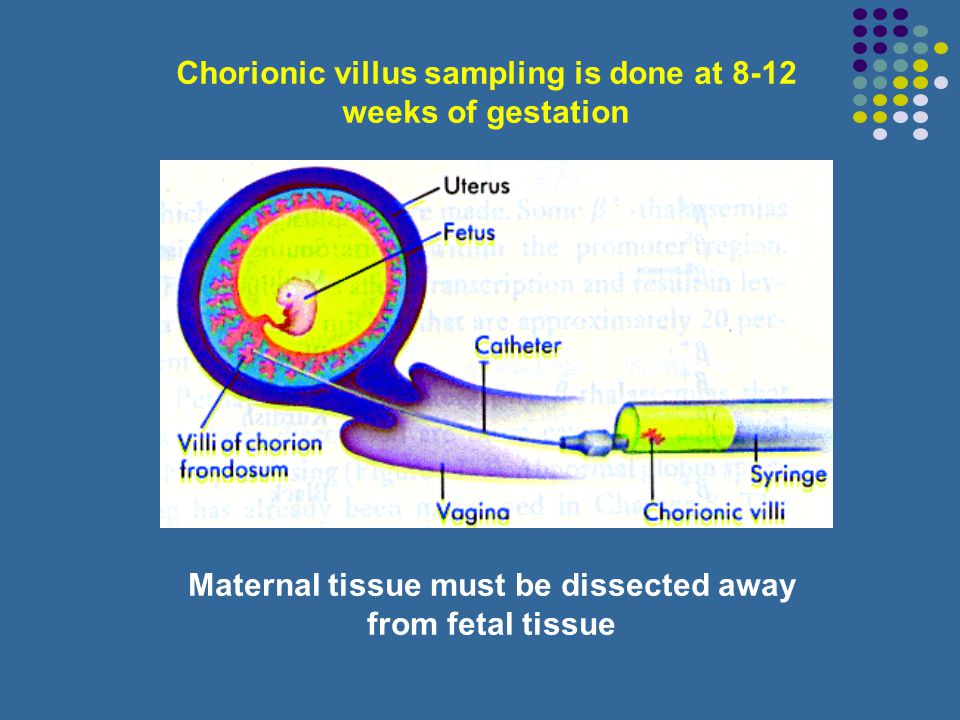 Chorionic villus sampling is done at 8-12 weeks of gestation