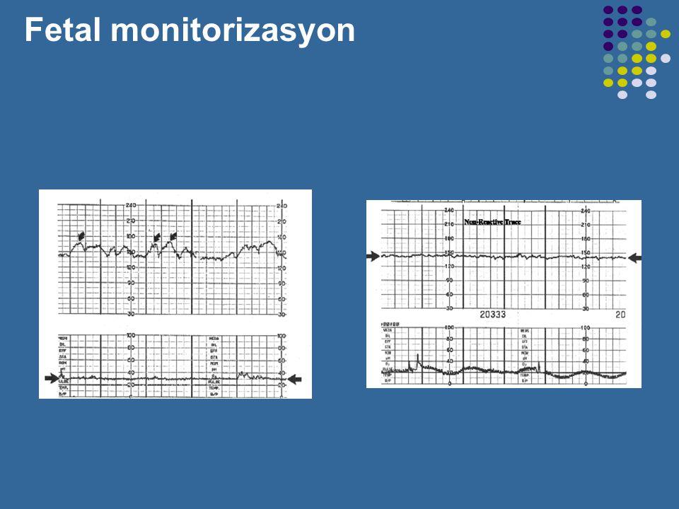 Fetal monitorizasyon